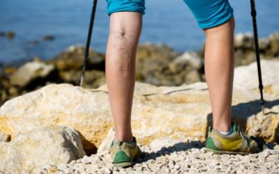 What happens if a Varicose Vein goes untreated?