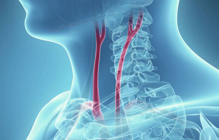 What is Carotid Artery Disease?
