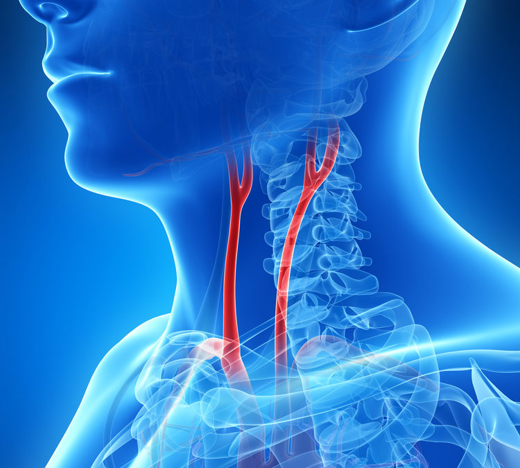 Treatment for Carotid Artery Disease
