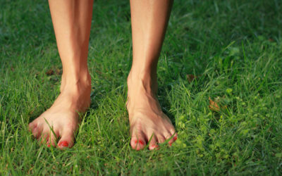 5 Tips to Help Prevent Varicose Veins