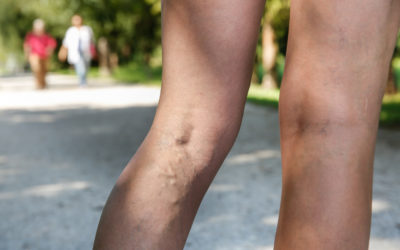 What Causes Swelling in Legs and Feet?