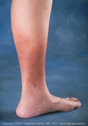 leg ulcer caused by untreated varicose veins