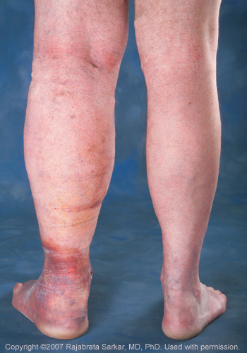 leg swelling caused by untreated spider veins