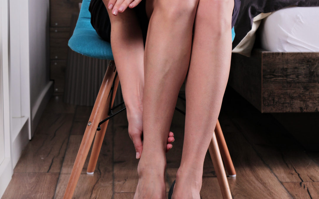 What are the Causes & Symptoms of Varicose & Spider Veins?