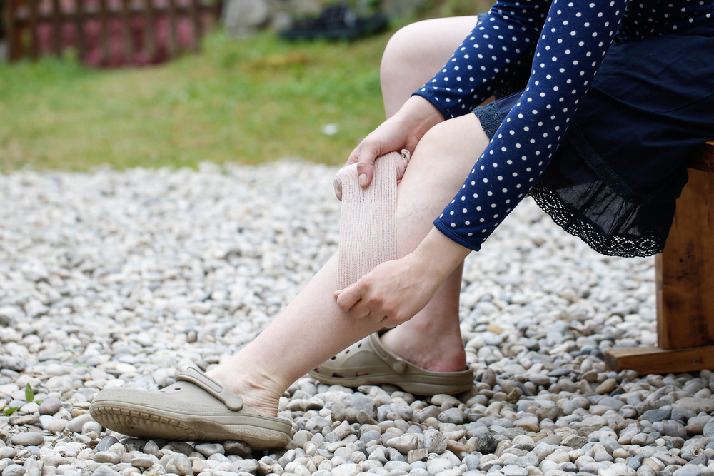 Top 5 Myths About Spider Vein Removal