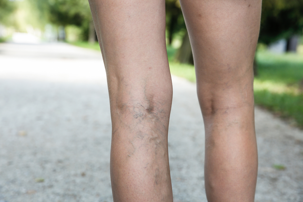 How to Treat and Prevent Spider Veins