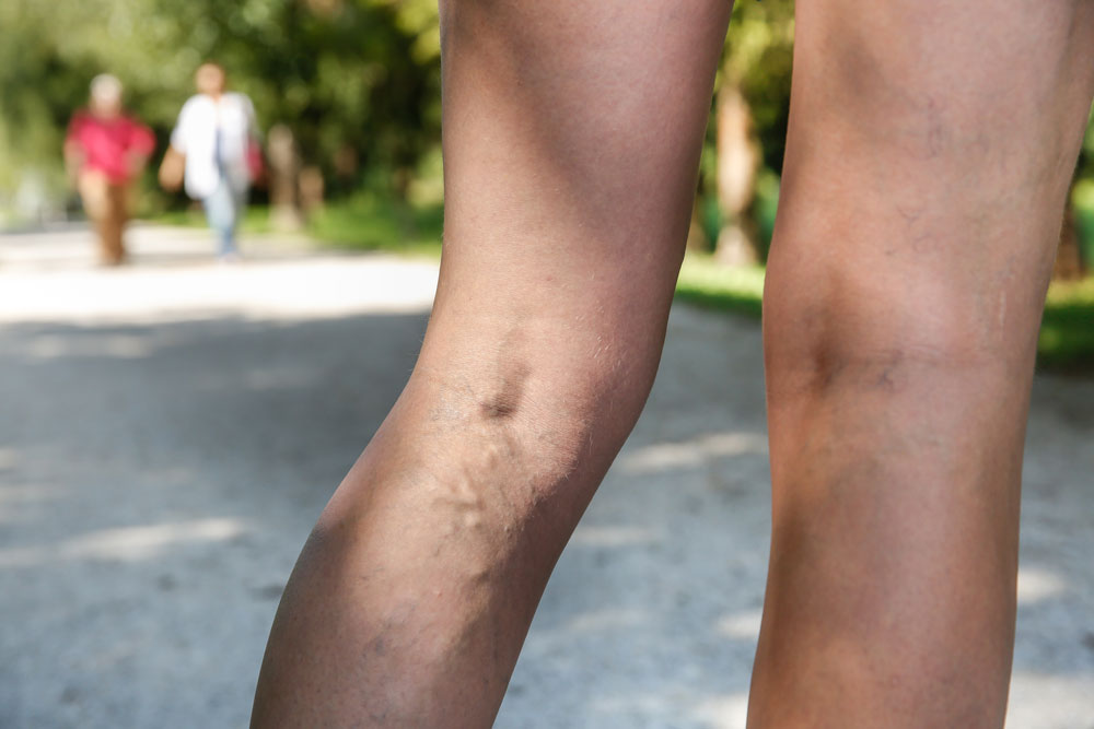 4 Myths about Varicose Veins